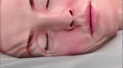 rimpels door op je zij slapen